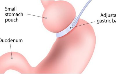 surgeon do in lap band surgery